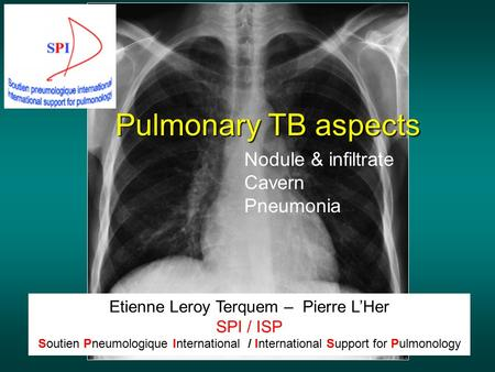 Pulmonary TB aspects Etienne Leroy Terquem – Pierre L'Her SPI / ISP Soutien Pneumologique International / International Support for Pulmonology Nodule.