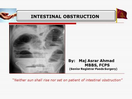 "INTESTINAL OBSTRUCTION By: Maj Asrar Ahmad MBBS, FCPS MBBS, FCPS (Senior Registrar Paeds Surgery) (Senior Registrar Paeds Surgery) ""Neither sun shall rise."