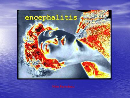 Mike Parenteau. Etiology / Pathophysiology Encephalitis is an acute inflammation of the brain, commonly caused by a viral infection. Sometimes, encephalitis.