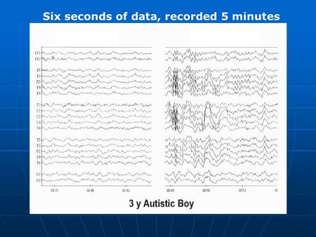 Six seconds of data, recorded 5 minutes apart. Electroencephalography First recording of electrical fields of animals, Caton (1875); humans, Berger.