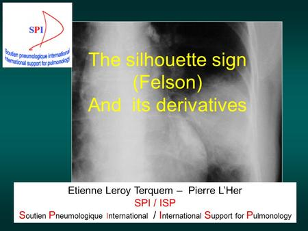 The silhouette sign (Felson) And its derivatives Etienne Leroy Terquem – Pierre L'Her SPI / ISP S outien P neumologique International / I nternational.