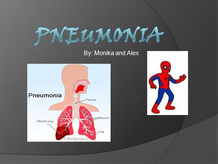 By: Monika and Alex. What factors make a person more likely to get this disease?  Pneumonia is a common disease that many people will suffer from. The.