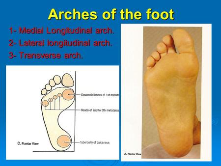 Arches of the foot 1- Medial Longitudinal arch. 2- Lateral longitudinal arch. 3- Transverse arch.