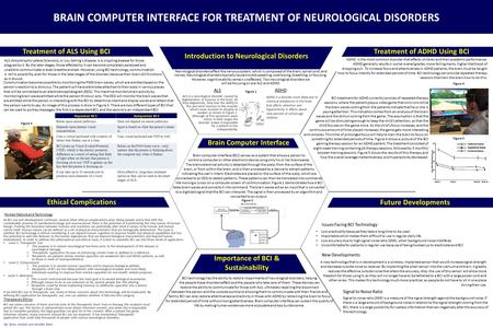 BRAIN COMPUTER INTERFACE FOR TREATMENT OF NEUROLOGICAL DISORDERS Introduction to Neurological Disorders Treatment of ADHD Using BCI Ethical Complications.
