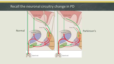 Recall the neuronal circuitry change in PD Normal Parkinson's.