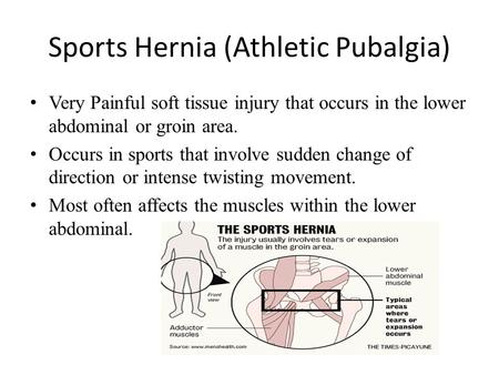 Sports Hernia (Athletic Pubalgia) Very Painful soft tissue injury that occurs in the lower abdominal or groin area. Occurs in sports that involve sudden.