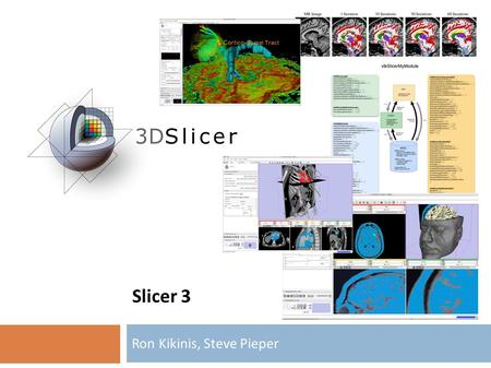 Slicer 3 Ron Kikinis, Steve Pieper. CTK Workshop Heidelberg, June 29/30, 2009 Slicer Goals  Stable, Usable, Cross Platform, End-User Software for Medical.