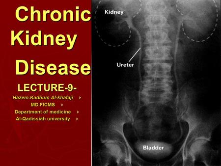 Anatomy Chronic Kidney DiseaseLECTURE-9-  Hazem.Kadhum Al-khafaji  MD.FICMS  Department of medicine  Al-Qadissiah university.