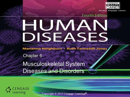 Copyright © 2015 Cengage Learning ®. Chapter 6 Musculoskeletal System Diseases and Disorders.
