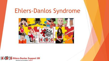 Ehlers-Danlos Syndrome. Ehlers-Danlos Syndromes  A group of separate conditions  You cannot pass on a type you don't have  Currently 7 types recognised.