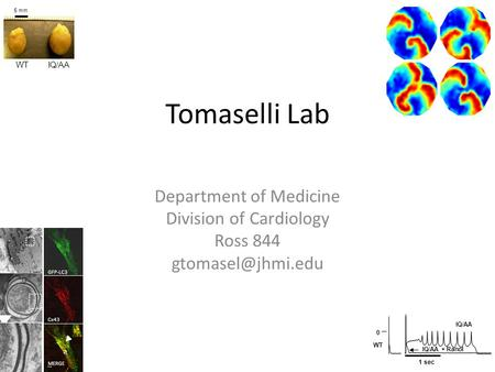 Tomaselli Lab Department of Medicine Division of Cardiology Ross 844 GFP-LC3 Cx43 MERGE 5 mm WTIQ/AA 1 sec 0 WT IQ/AA IQ/AA + Ranol.