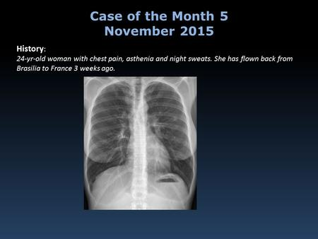 History : 24-yr-old woman with chest pain, asthenia and night sweats. She has flown back from Brasilia to France 3 weeks ago. Case of the Month 5 November.
