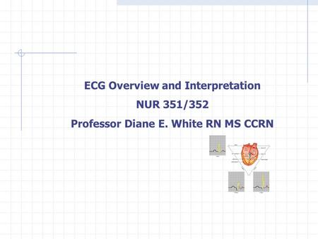ECG Overview and Interpretation NUR 351/352 Professor Diane E. White RN MS CCRN.