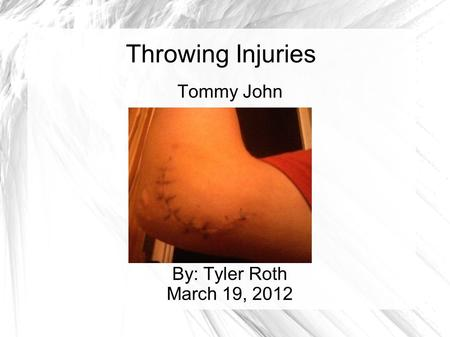 Throwing Injuries Tommy John By: Tyler Roth March 19, 2012.