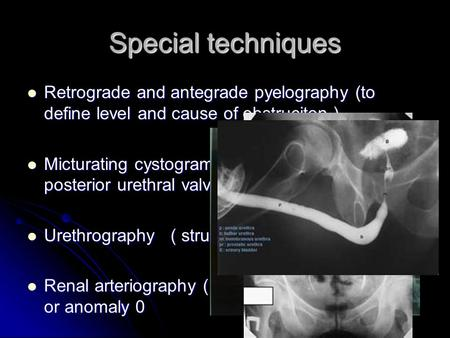 Special techniques Retrograde and antegrade pyelography (to define level and cause of obstruciton ) Micturating cystogram ( mainly in children for posterior.