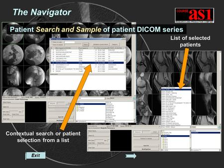 Exit Contextual search or patient selection from a list List of selected patients The Navigator Patient Search and Sample of patient DICOM series.