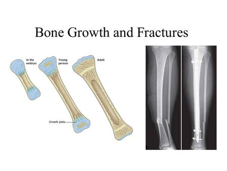 Bone Growth and Fractures. BONE GROWTH - hGH Increases size of all organs (including brain) Increases Protein Synthesis: Builds up Body Affected by exercise,