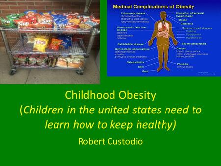 Childhood Obesity (Children in the united states need to learn how to keep healthy) Robert Custodio.