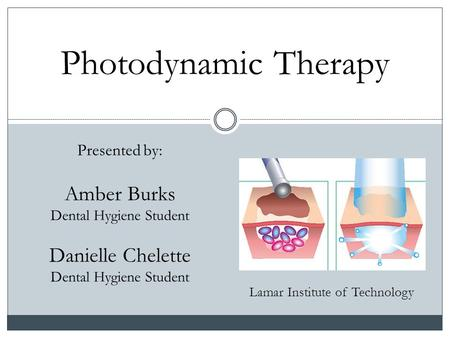 Photodynamic Therapy Lamar Institute of Technology Presented by: Amber Burks Dental Hygiene Student Danielle Chelette Dental Hygiene Student.