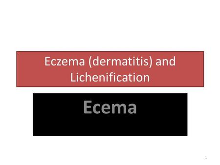 Eczema (dermatitis) and Lichenification Ecema 1. 2 The word 'eczema' comes from the Greek for 'boiling' that are often seen in the early acute stages.