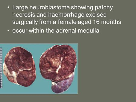 Large neuroblastoma showing patchy necrosis and haemorrhage excised surgically from a female aged 16 months occur within the adrenal medulla.