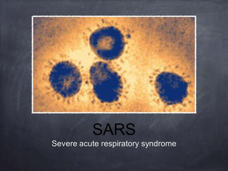 SARS Severe acute respiratory syndrome. History Outbreak in south China. Spread to other countries and regions. Identification of virus. Containment.