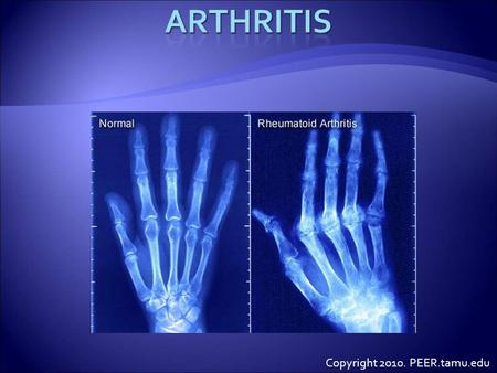 Copyright 2010. PEER.tamu.edu.  Do you know anyone that has arthritis?  Both humans and animals can get arthritis.  What is arthritis?  Arthritis.