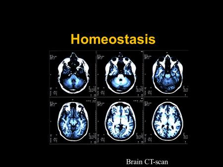 Homeostasis Brain CT-scan Importance of Homeostasis in Mammals  metabolic reactions are controlled by enzymes  enzymes work best in a narrow range.