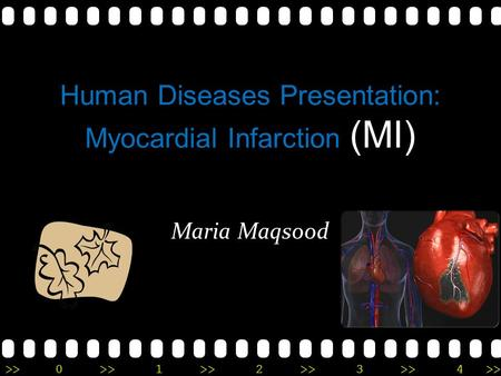 >>0 >>1 >> 2 >> 3 >> 4 >> Human Diseases Presentation: Myocardial Infarction (MI) Maria Maqsood.