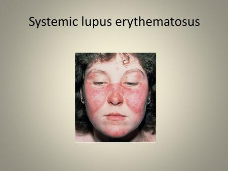 Systemic lupus erythematosus. 2 SLE is the most common multisystem connective tissue disease. It is characterized by a wide variety of clinical features.