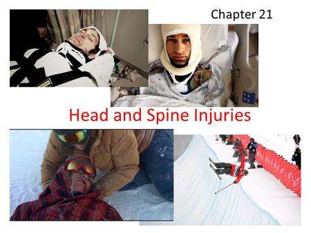 Head and Spine Injuries Chapter 21. HELMETS! Anatomy and Physiology.