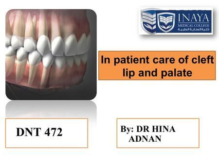 In patient care of cleft lip and palate By: DR HINA ADNAN DNT 472.