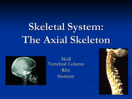 Skeletal System: The Axial Skeleton