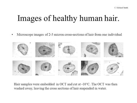 Images of healthy human hair. Microscope images of 2-3 micron cross-sections of hair from one individual Hair samples were embedded in OCT and cut at -10°C.