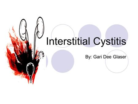 Interstitial Cystitis By: Gari Dee Glaser. What is it? It is a chronic pelvic pain disorder. It includes a recurring discomfort or pain in the bladder.