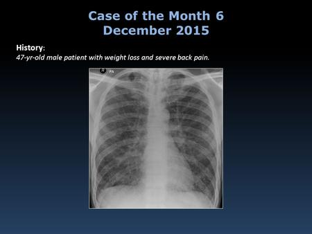 History : 47-yr-old male patient with weight loss and severe back pain. Case of the Month 6 December 2015.