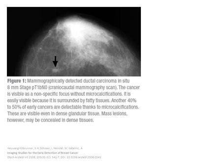 Heywang-Köbrunner, S H; Schreer, I; Heindel, W; Katalinic, A Imaging Studies for the Early Detection of Breast Cancer Dtsch Arztebl Int 2008; 105(31-32):