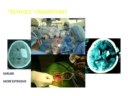 """KEYHOLE"" CRANIOTOMY EARLIER MORE EXTENSIVE. Ultrasound Guided Aspiration +/- Thrombolytic Agent."