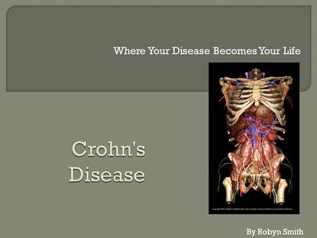 Where Your Disease Becomes Your Life By Robyn Smith.