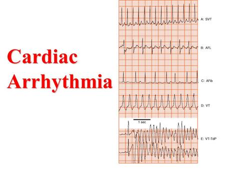 Cardiac Arrhythmia.
