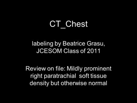 CT_Chest labeling by Beatrice Grasu, JCESOM Class of 2011 Review on file: Mildly prominent right paratrachial soft tissue density but otherwise normal.