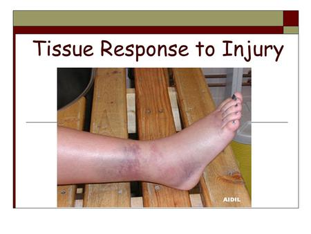 Tissue Response to Injury