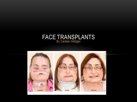 By Carissa Metzger FACE TRANSPLANTS. WHO CAN RECEIVE A FACE TRANSPLANT? Most face transplants deal with people who have a bone disease or an accident.