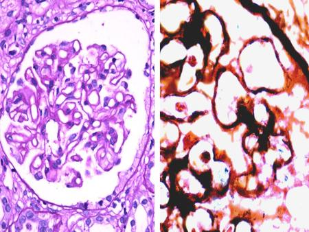 Membranous nephropathy Secondary causes: Epithelial malignancies, SLE, drugs (penicillamine), infections (Hep B, syphilis, malaria), metabolic (diabetes,