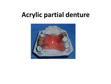 Acrylic partial denture. Definition: Is a dental prosthesis that substitute teeth and associated structures in partially edentulous arch made from acrylic.
