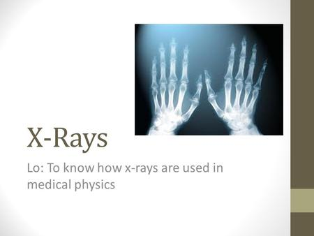 X-Rays Lo: To know how x-rays are used in medical physics.