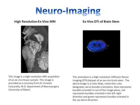 High Resolution Ex-Vivo MRIEx-Vivo DTI of Brain Stem This image is a high resolution MRI acquisition of an ex-vivo tissue sample. This image is provided.