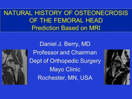 NATURAL HISTORY OF OSTEONECROSIS OF THE FEMORAL HEAD Prediction Based on MRI Daniel J. Berry, MD Professor and Chairman Dept of Orthopedic Surgery Mayo.