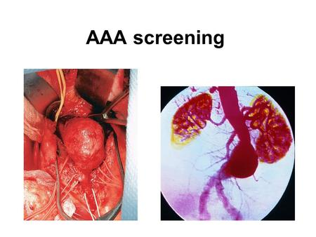 AAA screening. AAA – 1.5x normal diameter/>3cm diameter 6000 deaths/year – England + Wales 2% all deaths men 65+ 4% men 65-74 have AAA.