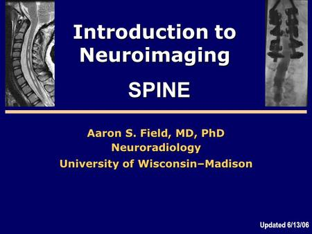Introduction to Neuroimaging Aaron S. Field, MD, PhD Neuroradiology University of Wisconsin–Madison SPINE Updated 6/13/06.